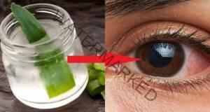 Комбинация с алое за подобряване на зрението