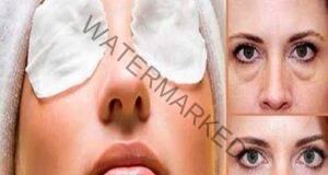 Най-добрият лек срещу акне, суха кожа и тъмни кръгове под очите