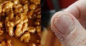 При проблеми със съня, косата и ноктите яжте това средство