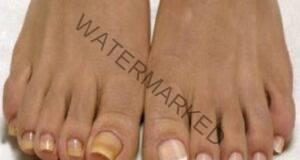 Тази смес елиминира гъбичките по краката и ръцете