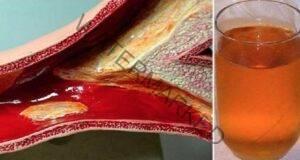 Това средство почиства артериите и укрепва имунитета