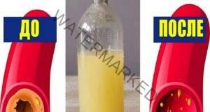 Топ 3 рецепти за почистване на холестерола от кръвоносните съдове
