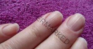 7 важни неща, които ноктите ви казват за вашето здраве