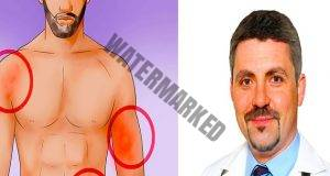 Ето как да разпознаете рака в ранен етап: съвети от онколог