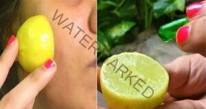 За безупречна кожа използвайте това средство с лимонов сок!