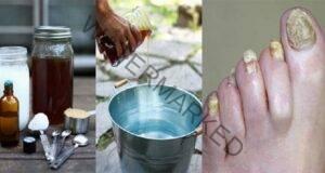 Избавете се от гъбичките по ноктите с този супер метод!