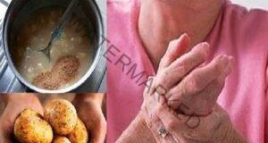 Компрес при ревматоиден артрит с картофи и лук