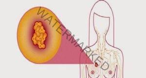 Куркума и черен пипер - комбинация, която лекува дори рак