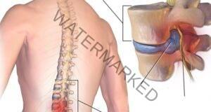 Лекарят ме посъветва да правя тези 12 упражнения за гърба