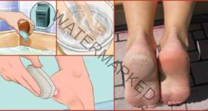 Направете краката си привлекателни само с 2 съставки
