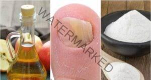 Победете гъбичките по ноктите с оцет и сода за хляб!