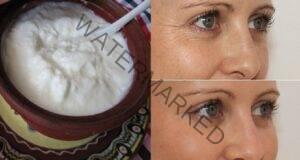 Предпазете кожата си от бръчки само с 2 натурални съставки