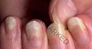 Гъбички по ноктите може да премахнете със смес от кухнята