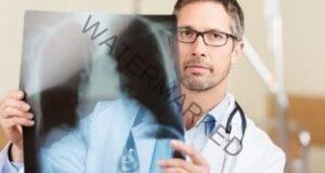 """Съвети срещу рак: Семплите """"Да"""" и """"Не"""", които ще удължат живота ви"""