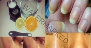 7 отлични приложения на лимона за красива кожа и коса