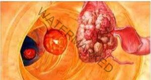 99% от болестите, включително рак, могат да бъдат избегнати