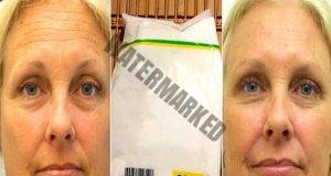 Ботокс маска от нишесте за изглаждане на бръчките