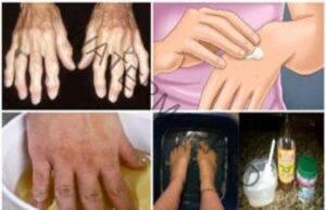 Народни средства при артрит: отървете се от болката!