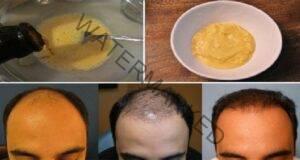 Преборете загубата на коса по напълно естествен начинПреборете загубата на коса по напълно естествен начин