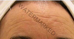 Домашен крем срещу бръчки от натурални съставки