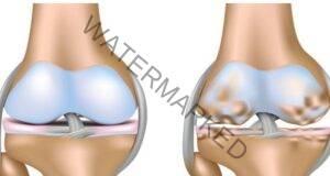 Лек за коленете - регенерира увредената тъкан и еластичността