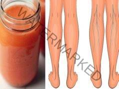 Тромбоза и разширени вени - алтернативни методи на лечение