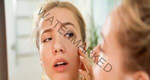 Хидратация на кожата при екстремни случаи - няколко съвета