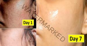 Кожа без бръчки - направете си тази тридневна процедура