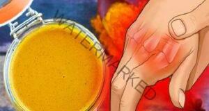 Кокосово масло и куркума при болки в ставите и ръцете