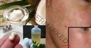 Маска за лице, която ще премахне черните точки и бръчките