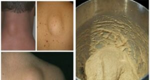 Народни рецепти срещу липоми: премахнете ги лесно и безболезнено