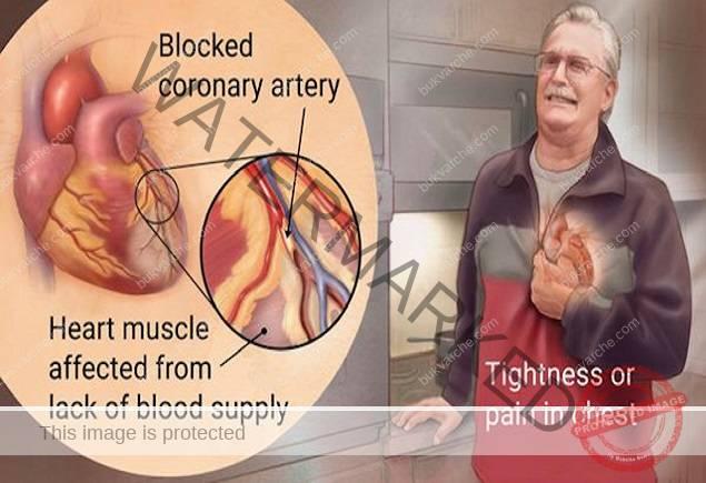 Симптоми при инфаркт, на които често не се обръща внимание