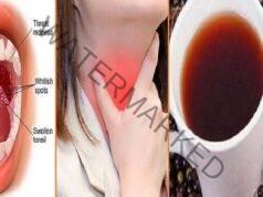 Инфекцията в гърлото ще изчезне само за няколко часа с този лек