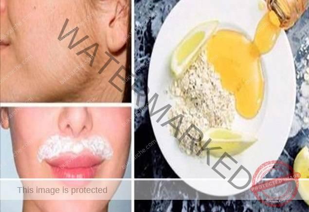 Нежелани косми по лицето - смес от 3 съставки ги премахва напълно