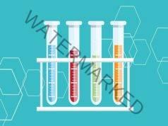 Кръвни тестове, които задължително трябва да си направите
