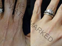 Маска за ръце, която прави кожата еластична и гладка