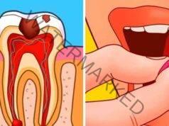 Домашни средства за зъбобол, които незабавно облекчават болката