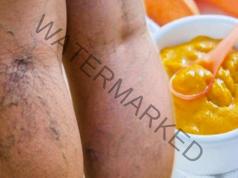 Лек с моркови и ябълков оцет за разширени вени