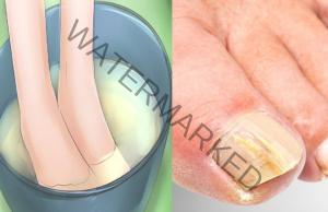 Натурално средство срещу гъбички по ноктите. Рецепта