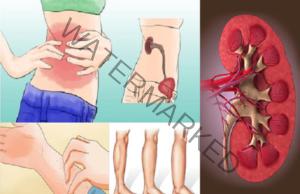 Бъбречни заболявания - симптоми, на които да обърнете внимание
