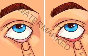 Бърз тест в домашни условия: какво е здравословното ви състояние