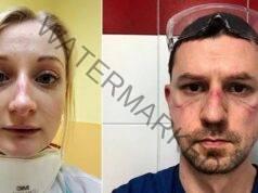 Лицата на лекарите, борещи се с коронавируса. Изглеждат ето така