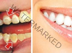 Зъбният камък може да бъде премахнат в домашни условия