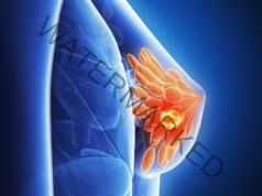 Рак на гърдата и как да намалим риска от появата му