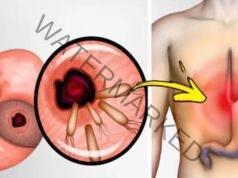 Лек срещу хеликобактер пилори. Полезни съвети и рецепти
