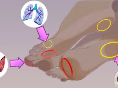 Мазолите на краката подсказват за определени заболявания
