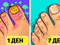 Куркума и кокосово масло срещу гъбички по ноктите