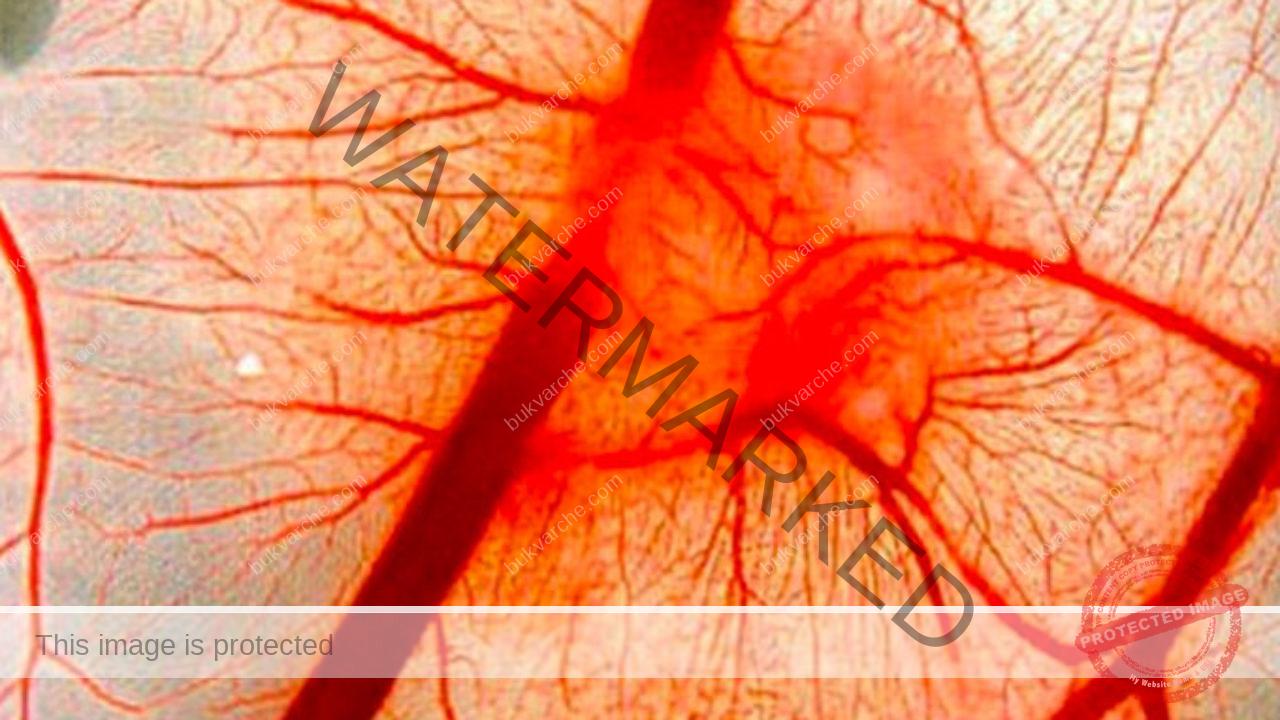 Еластичност на кръвоносните съдове - гаранция за добро здраве