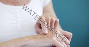 Лек срещу старчески петна и лунички, който изглажда бръчките