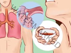 Домашни рецепти срещу кашлица с мед, лук и мляко